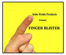 Finger Blister by Ickle Pickle